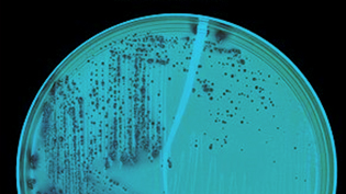 an image of bacteria in a petri dish